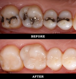 Fillings & Composite Bonding