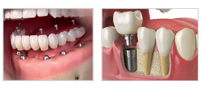 Dental Implants Breeze Dental