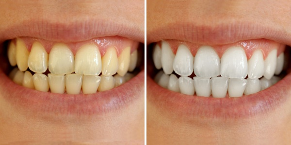 tooth whitening at Breeze Dental